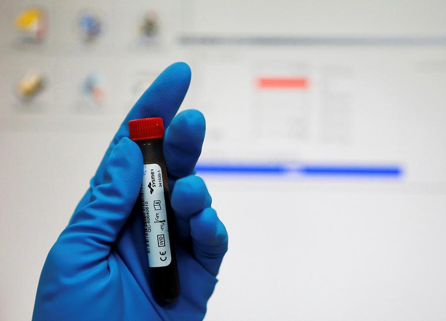Пробирка собразцом крови вРоссийской антидопинговой лаборатории вМоскве. Фото: Сергей Карпухин/ Reuters