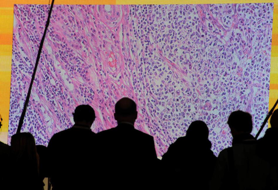 Раковые клетки, показанные наэкране через микроскоп. Фото: Fabian Bimmer/ Reuters