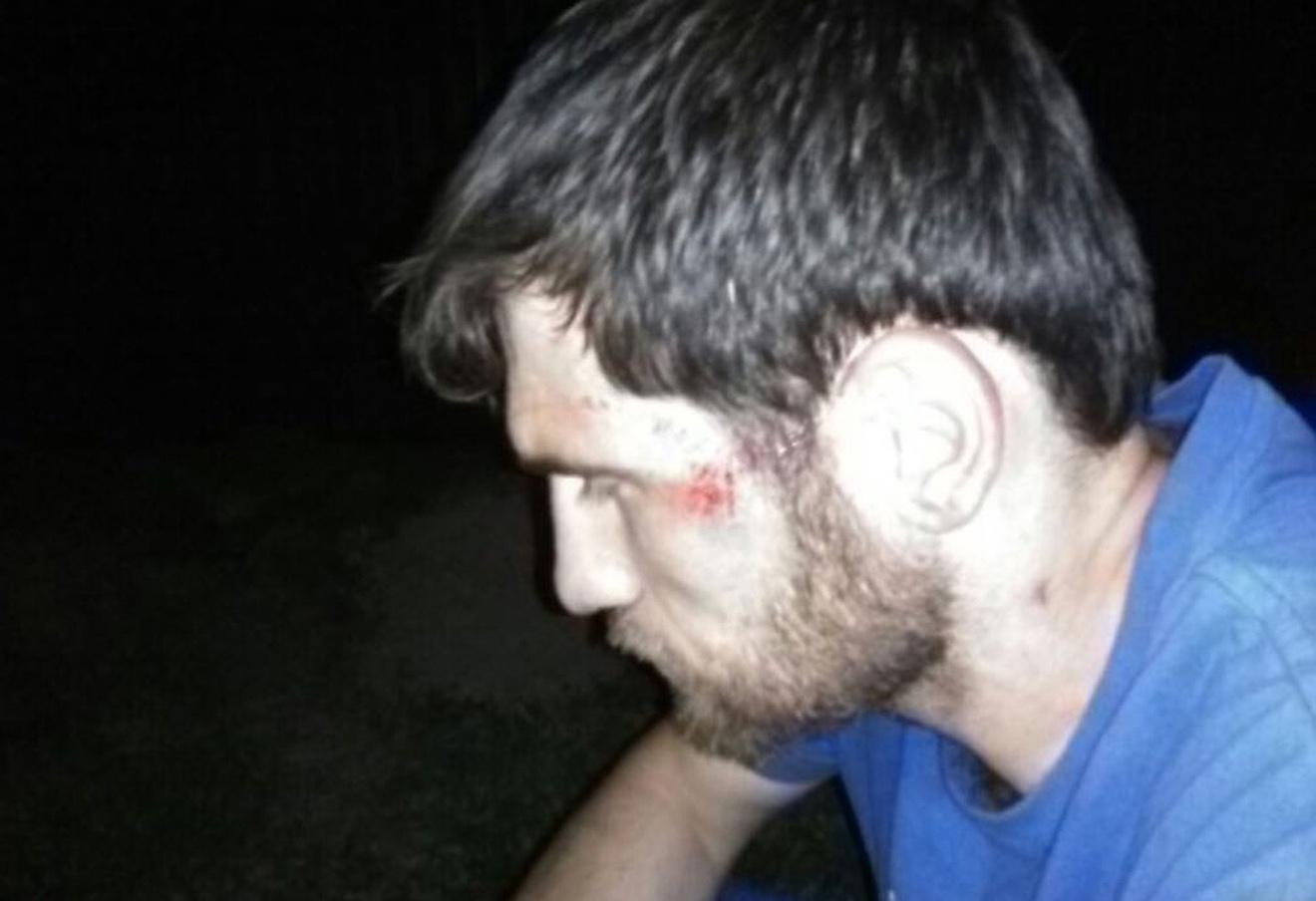 Избитый участник пробега Рустам Малламагомедов. Фото с сайта объединения перевозчиков России