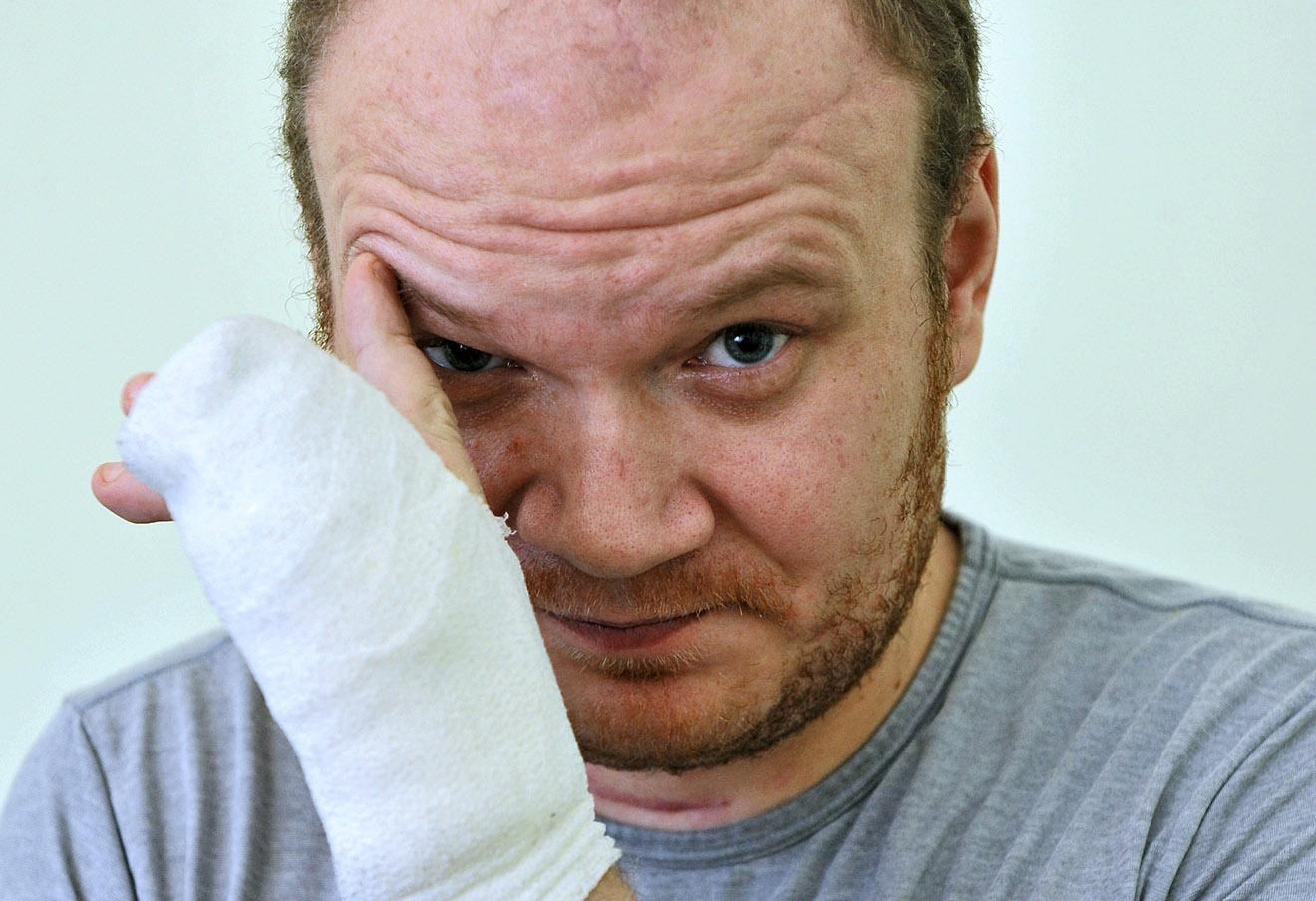 Олег Кашин после покушения, 2010 год.