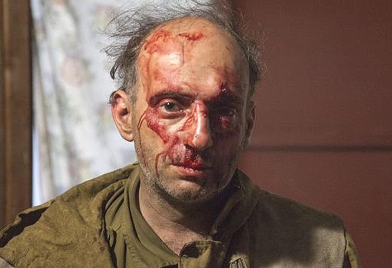 Сотрудник Greenpeace Михаил Крейндлин после нападения. Фото: Мария Васильева / Greenpeace