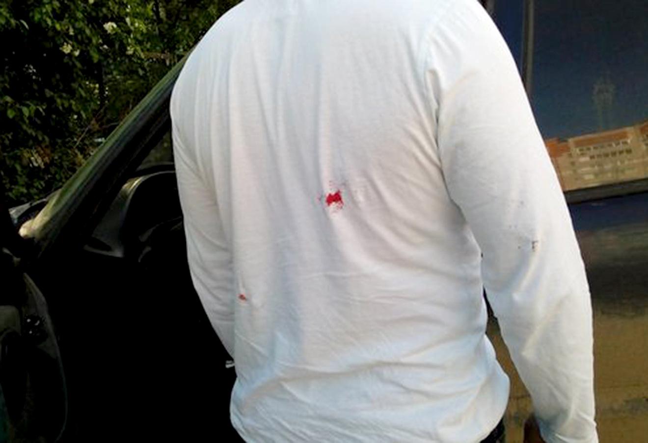 Евгений Доможиров после нападения.